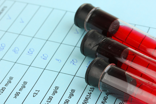 Common 'Heart Attack' Blood Test May Predict Future Hypertension